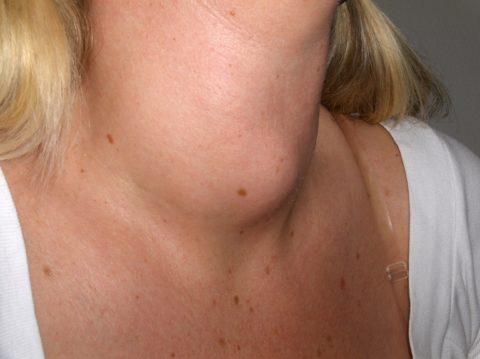 Диффузный токсический зоб у женщины средних лет.