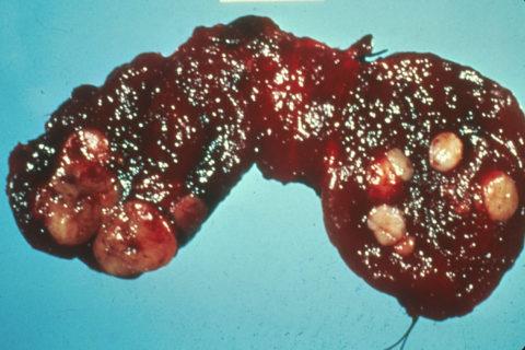 Изменения в щитовидной железе при образовании в ней раковых клеток.