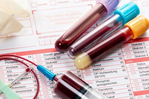 Лабораторная диагностика заболеваний щитовидки включает несколько тестов