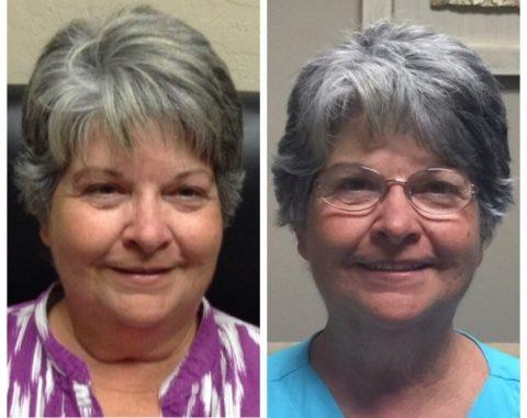 На фото - пациентка с гипотиреозом до (слева) и после лечения