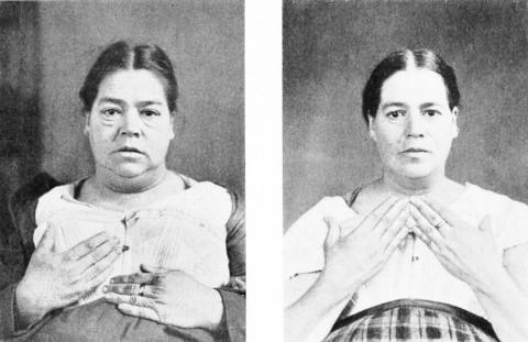 На фото – пациентка с гипотиреозом до и после лечения