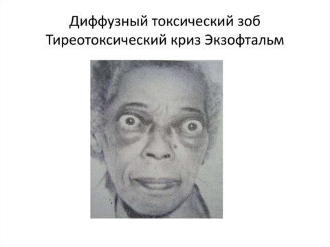 На фото женщина с заболеванием щитовидной железы. Характерный признак развития токсического диффузного зоба – выпученные глаза.