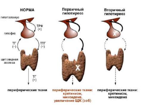 Патогенез гипотиреоза