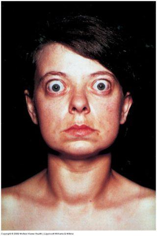 Пациентка с увеличенной щитовидкой на фоне гипертиреоза