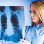 Расшифровка проявленного рентгенологического снимка