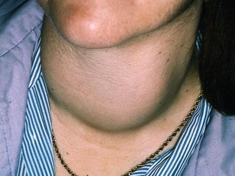 Витамины с йодом, необходимые пациентам при заболевании щитовидной железы