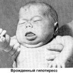 Рот полуоткрыт, язык увеличен в размерах
