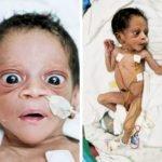 Новорожденный с выраженным гипертиреозом