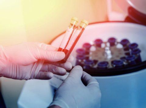 Какая в анализах должна быть норма: антитела к тиреоидной пероксидазе