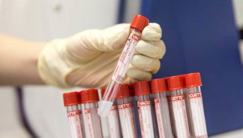 Анализ на тиреоглобулин не назначается для скринингового обследования при подозрении возникновения раковой опухоли щитовидки