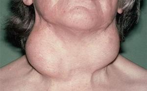 Диффузно-узловая форма поражения щитовидки