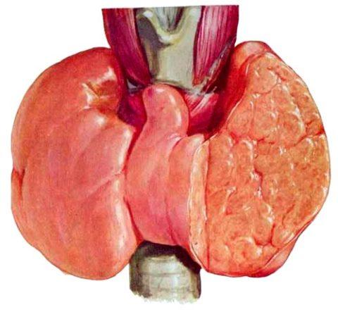 Дифузное воспаление щитовидной железы