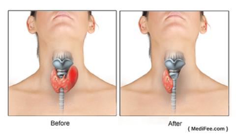 До и после гемитиреоидэктомии