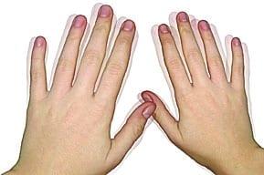 Дрожание пальцев рук