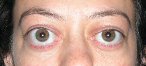 Экзофтальм глаз