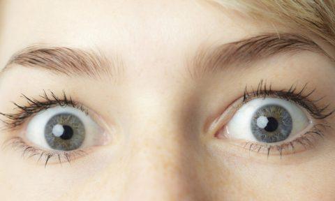 Экзофтальм (выпячивание глаз из черепа) при тиреотоксикозе