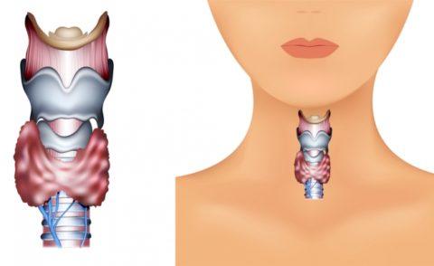 Лечение диффузного зоба: особенности, причины, симптоматика заболевания, способы лечения и профилактики проблем со щитовидной железой