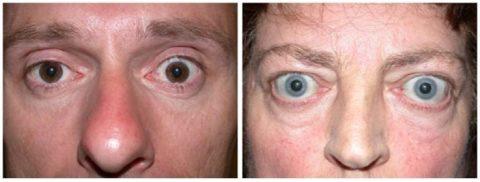 Гипертиреоз выдают характерные выпученные глаза
