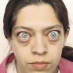 Глазная симптоматика при высоком уровне Т4