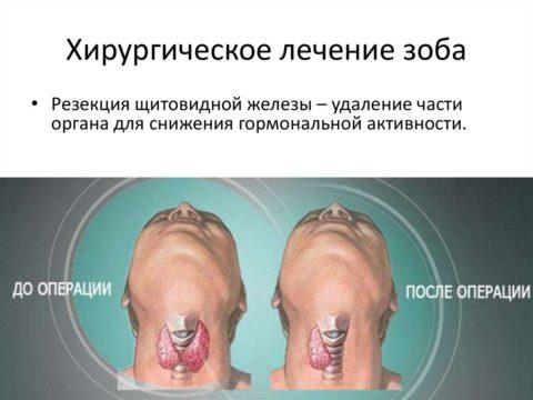 Хирургическое удаление щитовидной железы
