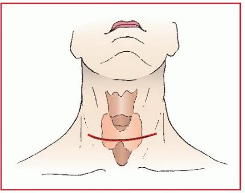 Красным цветом обозначена линия разреза при хирургическом вмешательстве на щитовидной железе