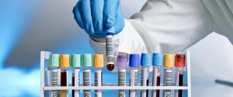 Лаборатории предлагают десятки тестов: как выбрать самые необходимые?