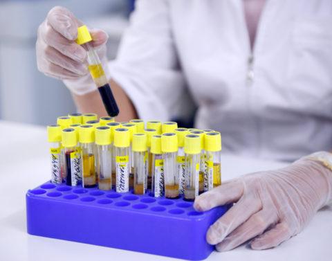Лабораторные исследования – один из главных пунктов диагностики заболеваний щитовидки