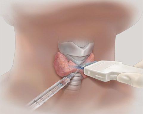 Лечение узла на щитовидке лазерным медицинским оборудованием.