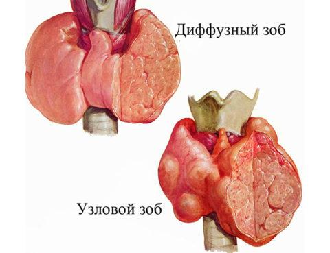Множественные узлы щитовидной железы в разрезе.