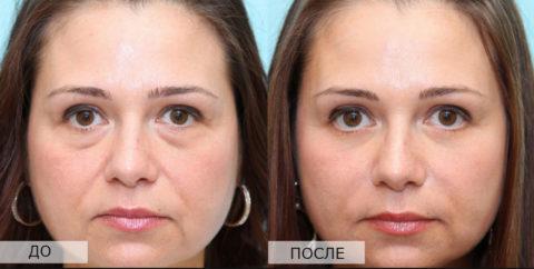 На фото – пациентка с гипотиреозом до и после восстановления нормального уровня ТТГ