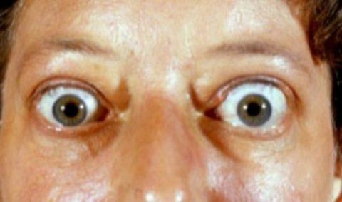 На фото – выраженный экзофтальм у пациентки с ДТЗ