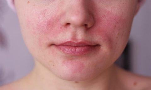 На фото представлена пациентка с гиперемией кожных покровов лица, при наличии аллергической реакции на компоненты препарата при лечении тиреотоксикоза щитовидной железы.