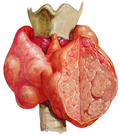 На фото в разрезе показана щитовидная железа с наличием в ней множества узлов.