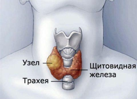 Узлы на щитовидной железе, лечение лекарственными препаратами, малоинвазивными методами и с помощью хирургического вмешательства