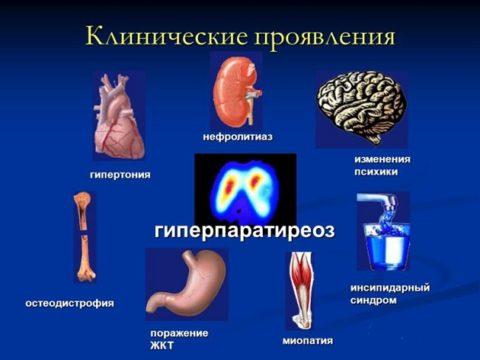 На картинке представлены изменения в человеческом организме, которые происходят при гиперпаратиреозе.