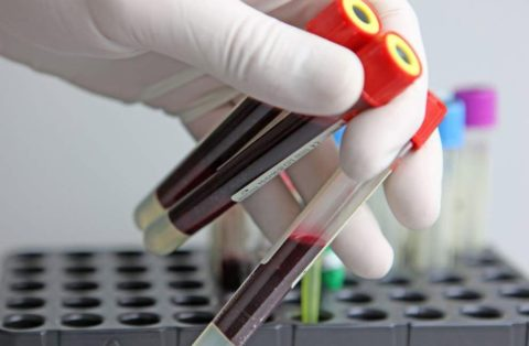 Основные правила забора крови для исследования.