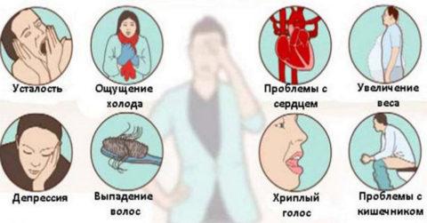 Основные признаки гипотиреоза при аутоиммунном воспалении
