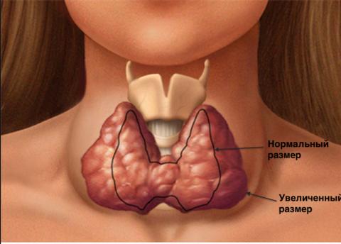 Патологии щитовидки приводят к ее увеличению