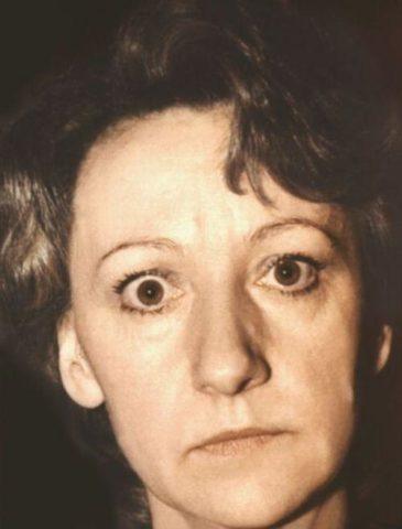 Пациентка с изменениями глазного яблока при тиреоидите.
