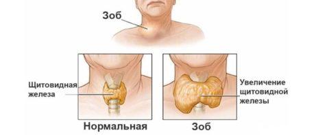 Поражение щитовидной железы