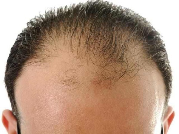 Диффузное выпадение волос у мужчин