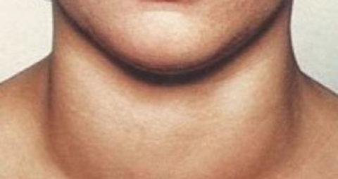 Появление зоба означает явное нарушение баланса гормонов