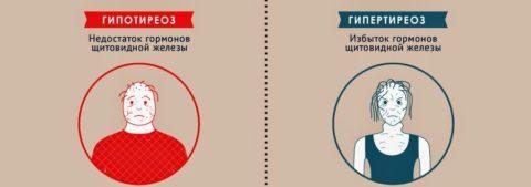 При отклонении гормонов ЩЖ от нормы выделяют два ведущих синдрома