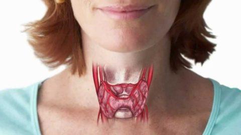 Как меняется жизнь человека после удаления рака щитовидной железы?