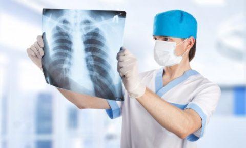 Рентген щитовидки
