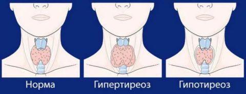 Щитовидная железа при патологиях