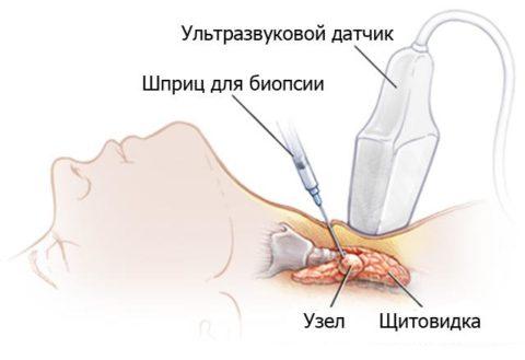 Схема проведения биопсии