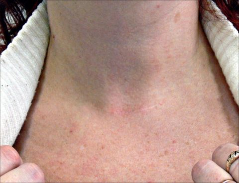 Шрамов на шее после удаления щитовидки практически не остается