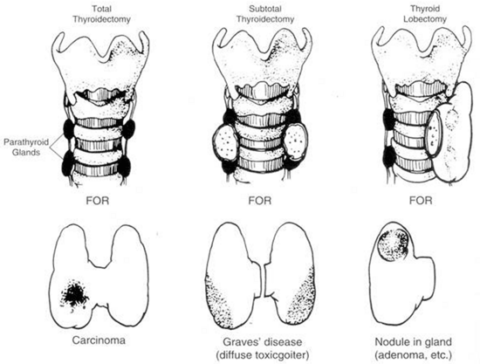 Слева – тиреоидэктомия по поводу рака, в середине – субтотальная резекция по поводу диффузного токсического зоба, справа гемитиреоидэктомия по поводу узлового образования правой доли
