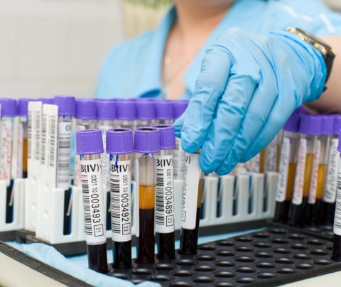 Средняя цена анализа на тиреотропин в частных медицинских центрах – 800 р.